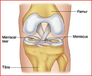 If I Develop a Meniscus Tear, What are my Options and do I need Immediate Surgery?