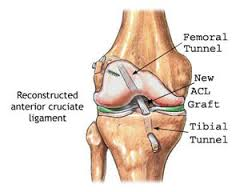 ACLrecon.medical
