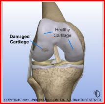 cartilagerepair