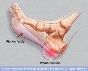 Plantar-Fasciitis-Picture