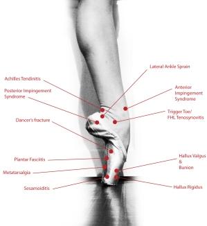 ballet injury