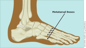 metatarsal