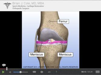 meniscus repair2