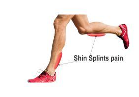 shin-splints-pain