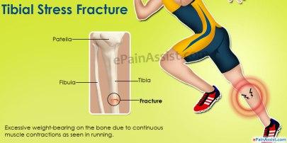 tibial-stress-fractureial